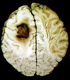 The first signs of brain cancer. Indication of the disease.
