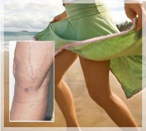 Removal of vascular asterisks on the legs is not only an aesthetic necessity!